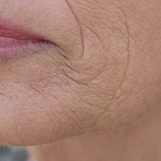 Hautveränderungen während der Menopause