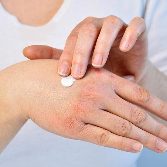 Skin Food für trockene Haut